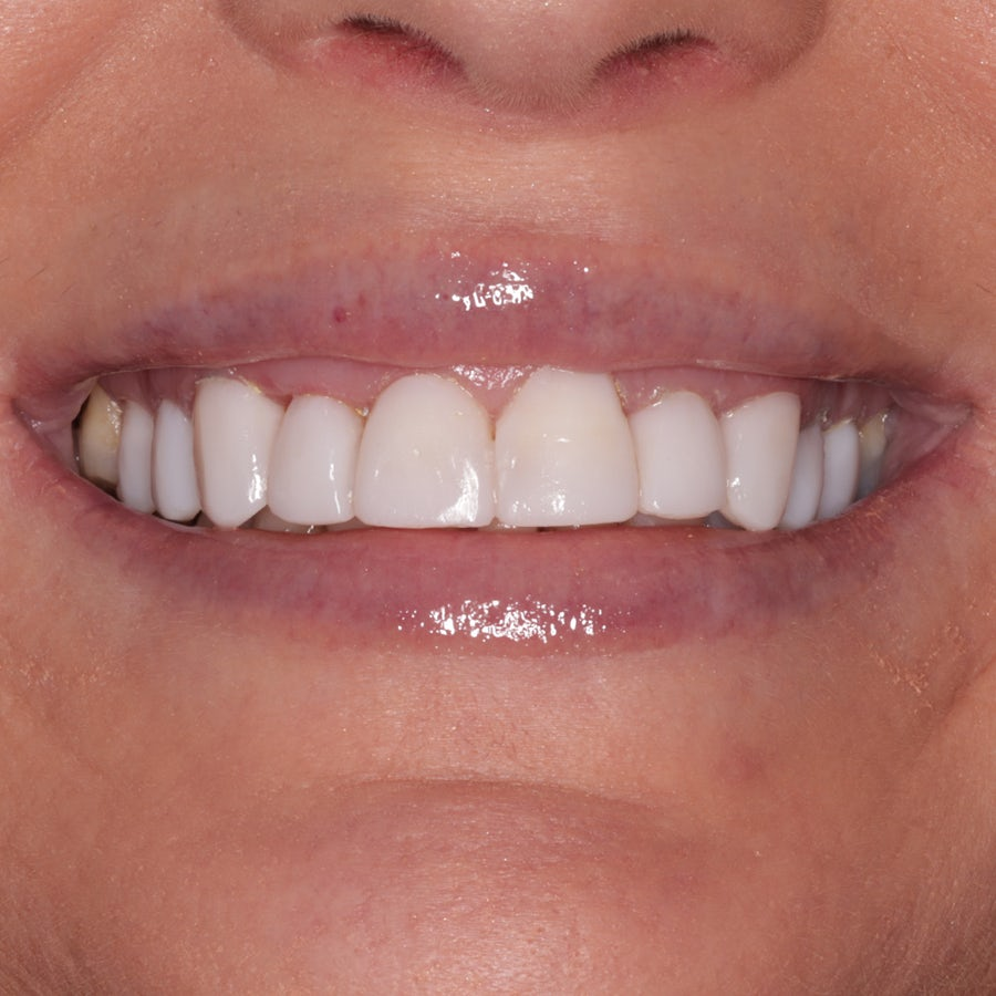 Composite veneers - smile 12 - after - 3Dental Dublin & Limerick