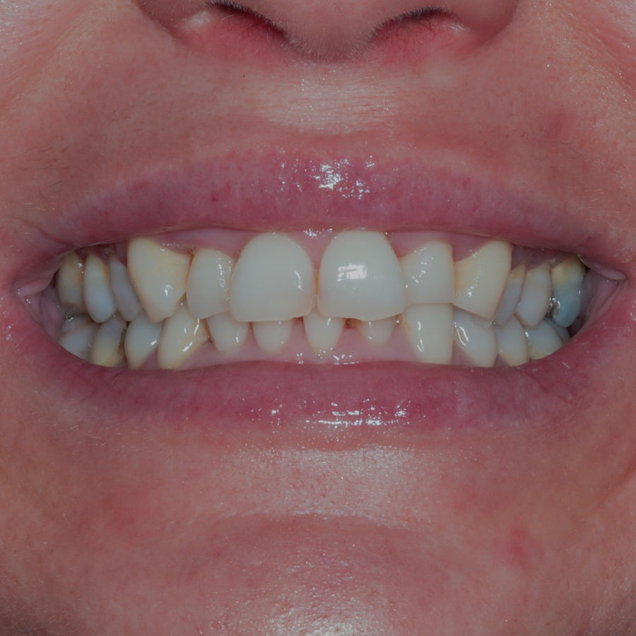 Composite veneers - smile 12 - before - 3Dental Dublin & Limerick