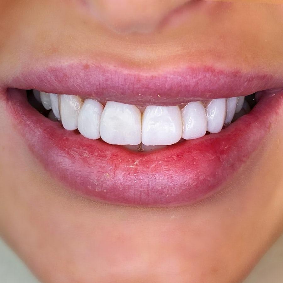 dental bonding smile 16 - after - 3Dental