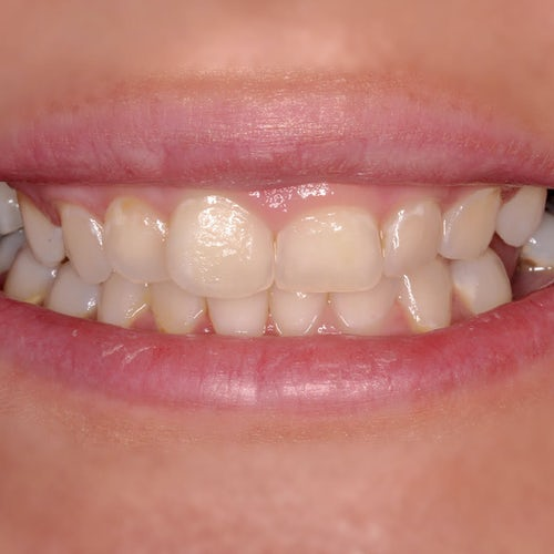 Gum contouring, implants, and composite veneers - before