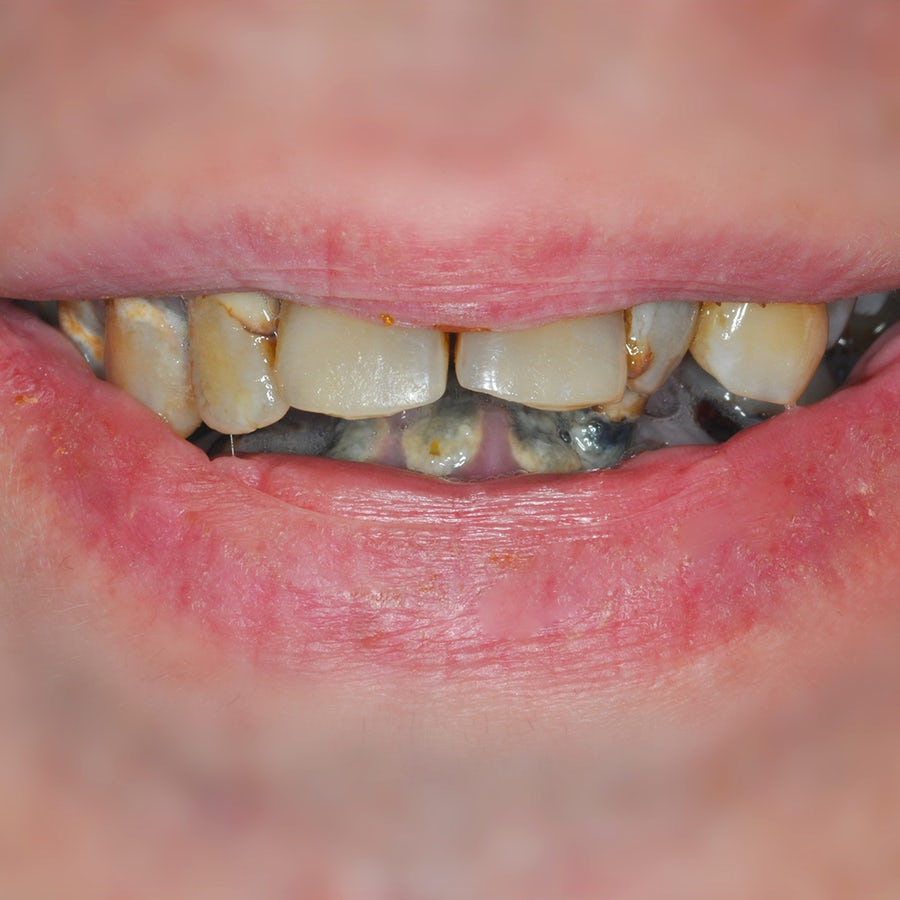 Smile in a day - before - 3Dental