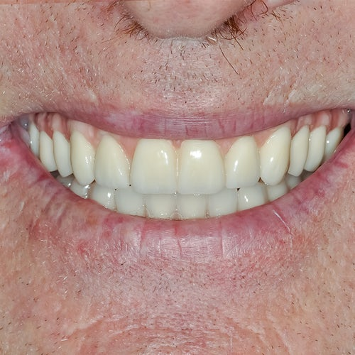 Smile in a day - Smile 14 - After - 3Dental