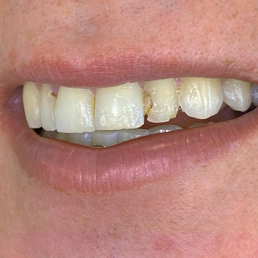 Composite Bonding - Smile 10 - Before - 3Dental