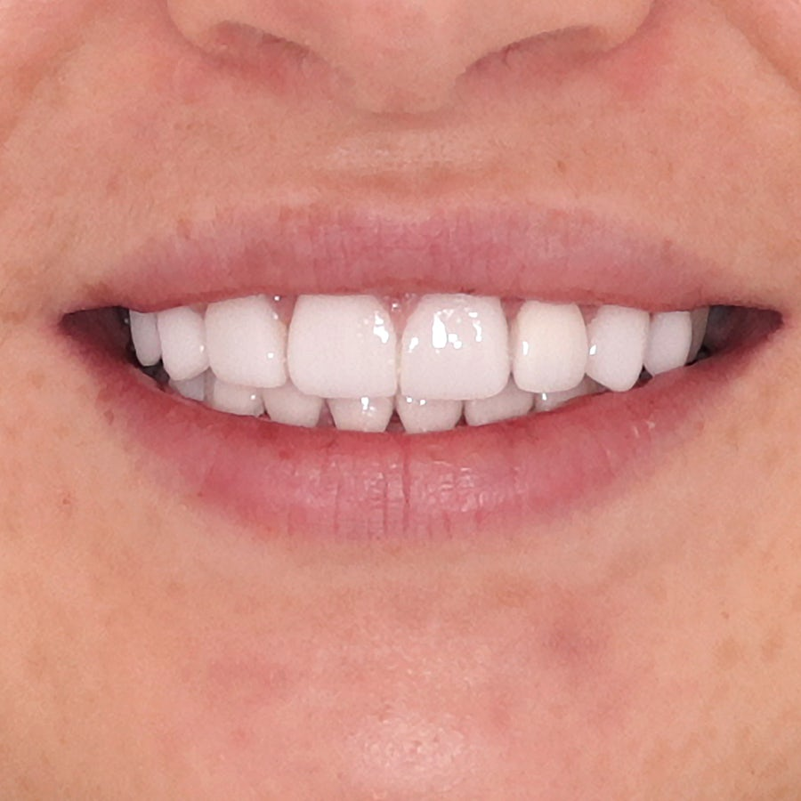 Porcelain veneers - smile 1 - after - 3Dental Dublin & Limerick