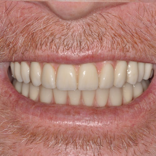 Smile in a Day - After - Smile 13 - 3Dental