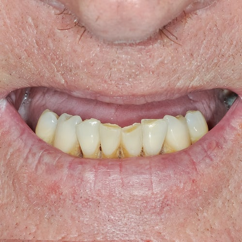 Smile in a day - Smile 14 - Before - 3Dental