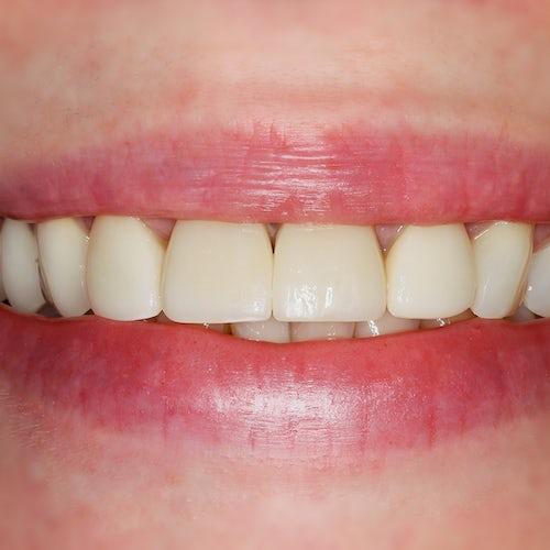 Porcelain Veneers - Smile 2 - After - 3Dental