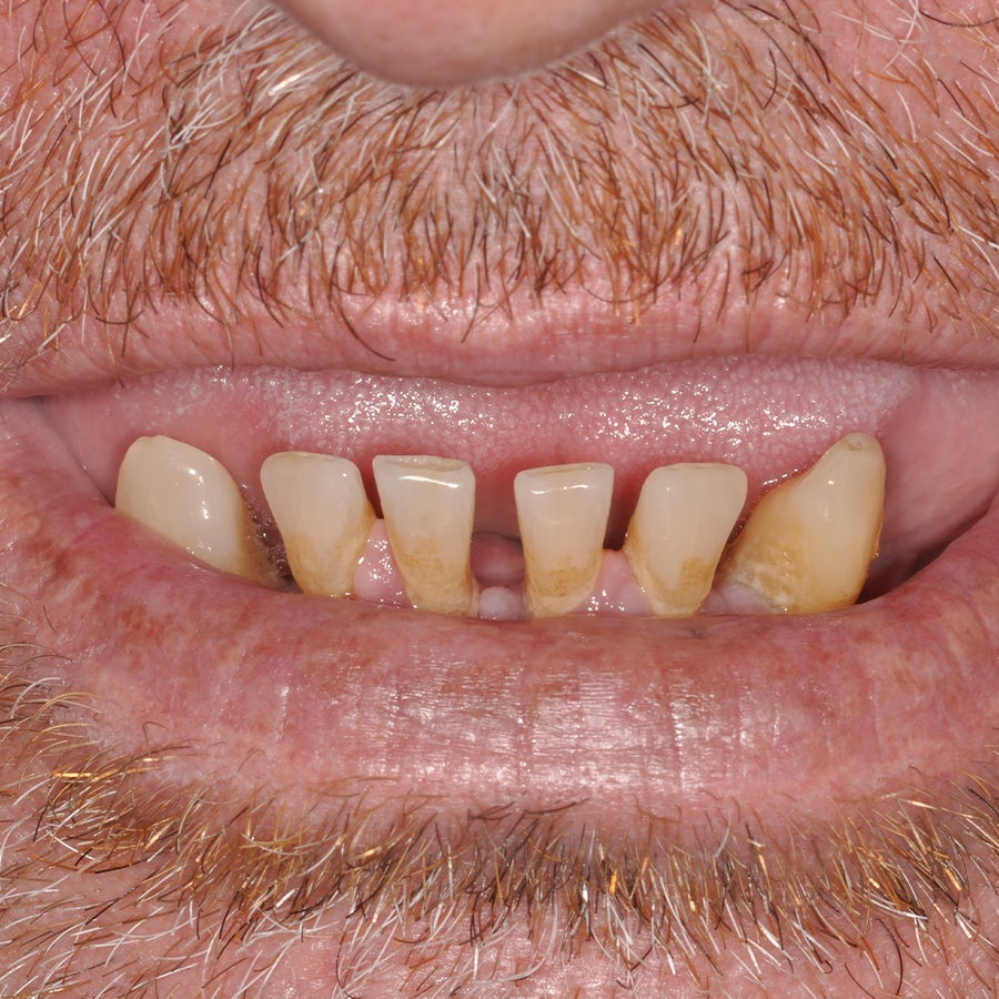 Smile in a Day - Before - Smile 13 - 3Dental