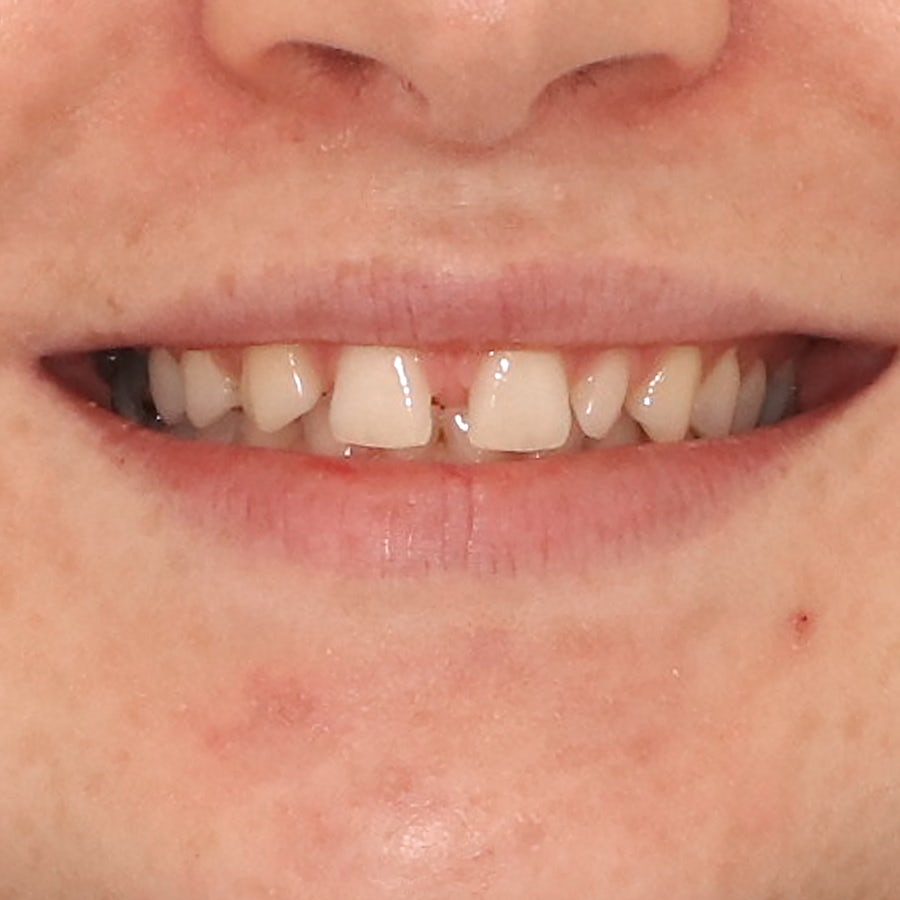 Porcelain veneers - smile 1 - before - 3Dental Dublin & Limerick