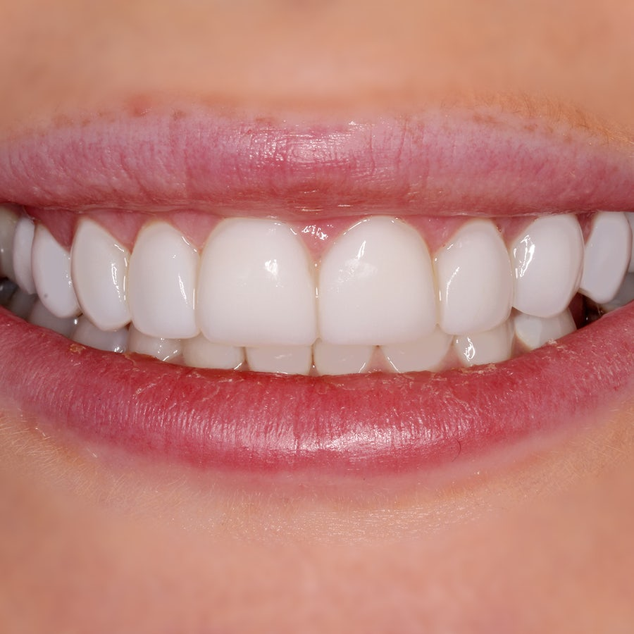 Gum contouring, implants, and composite veneers - after