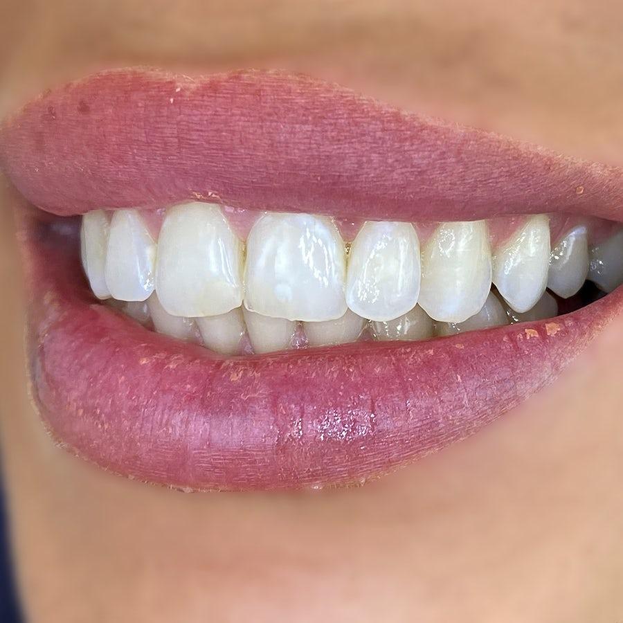 Composite Bonding - Smile17 - Before - 3Dental