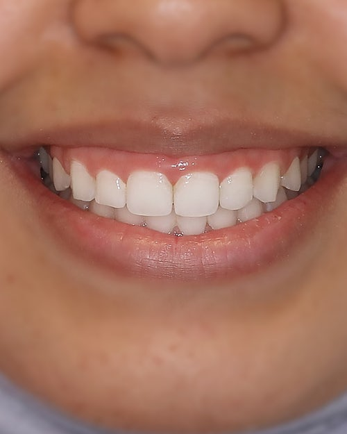 Gingivectomy - Before - Dr. Andoni Jones - Before