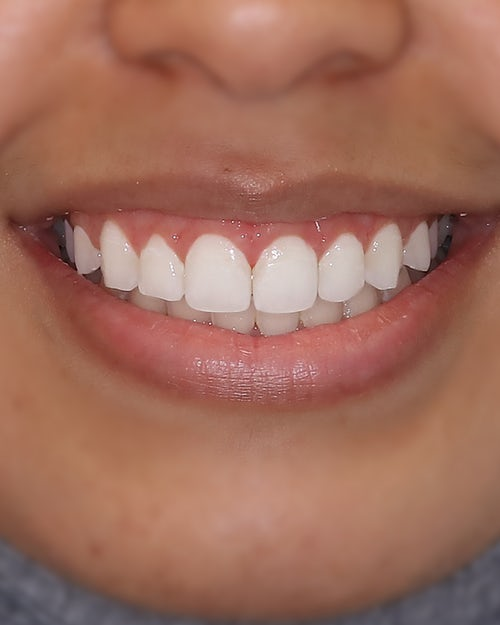 Gingivectomy - Before - Dr. Andoni Jones - After