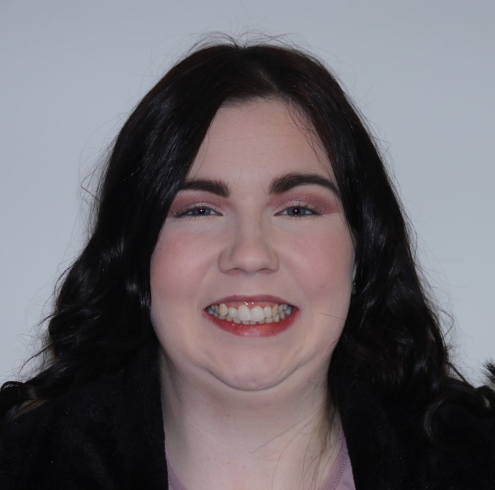 shauna-kerrigan-before-invisalign