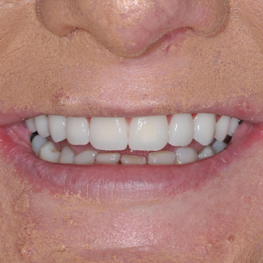 Smile in a day - Paula Cronnelly - after - 3dental