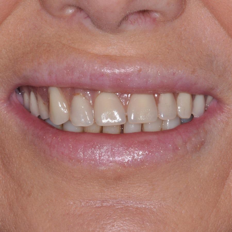 Teeth in a Day Procedure - Connie Allen - Before - 3Dental