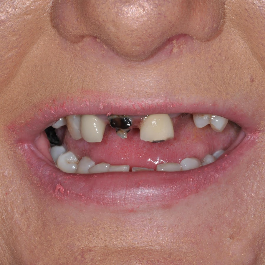 Smile in a day - Paula Cronnelly - before - 3Dental