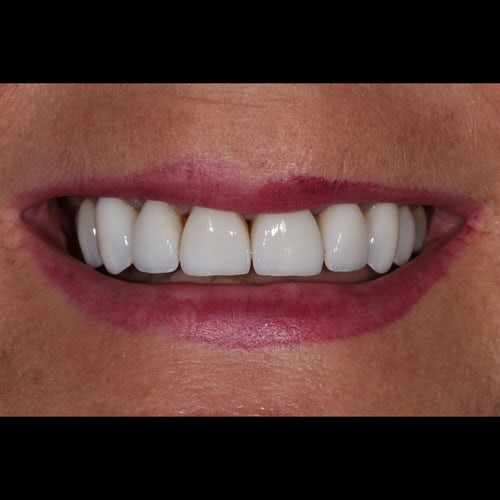 Margaret Kett - After - Dental Veneers