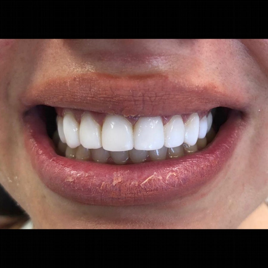 After - Laura - Dental bonding and 6 month braces