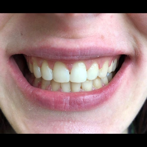 Martina - After - 6 month braces and dental bonding