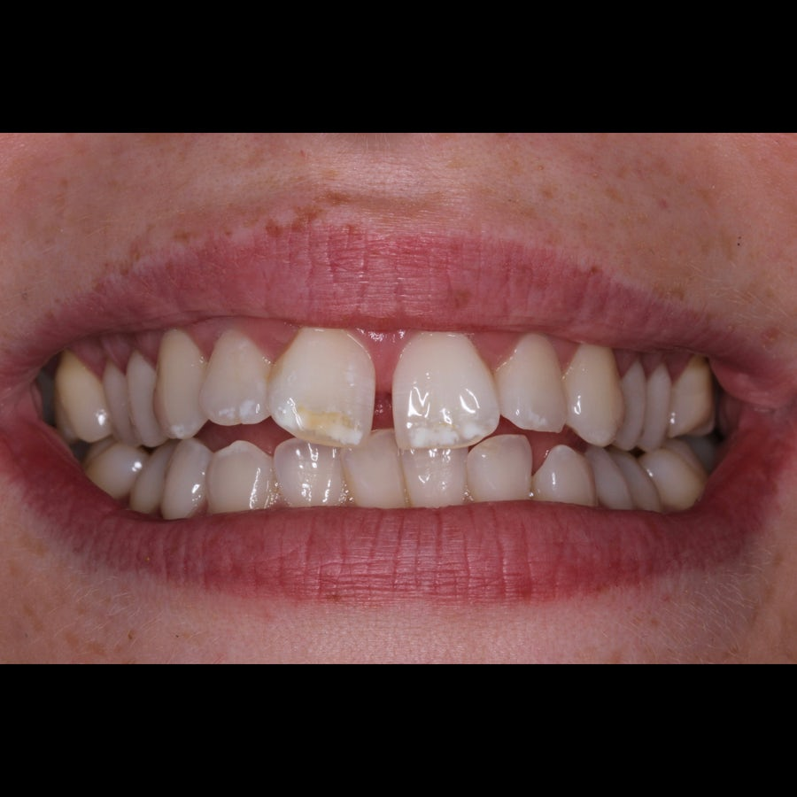 How 6 month braces work - Tara - before - 3Dental