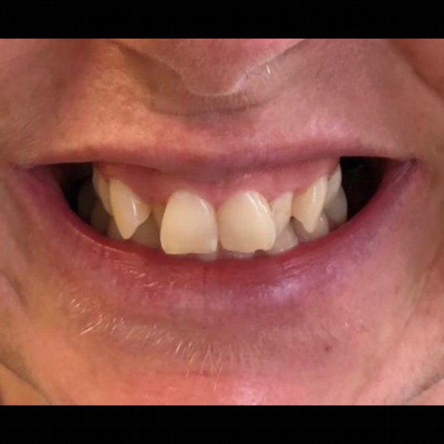 6 month braces - before - 3Dental