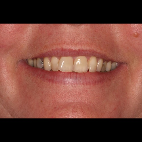 Anita Toner - Composite Bonding - Before