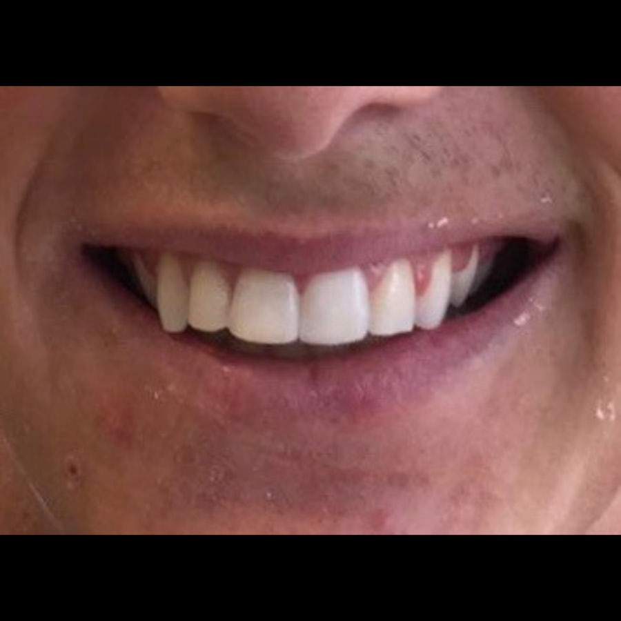 How 6 Month Braces Work - 6 month braces - after - 3Dental