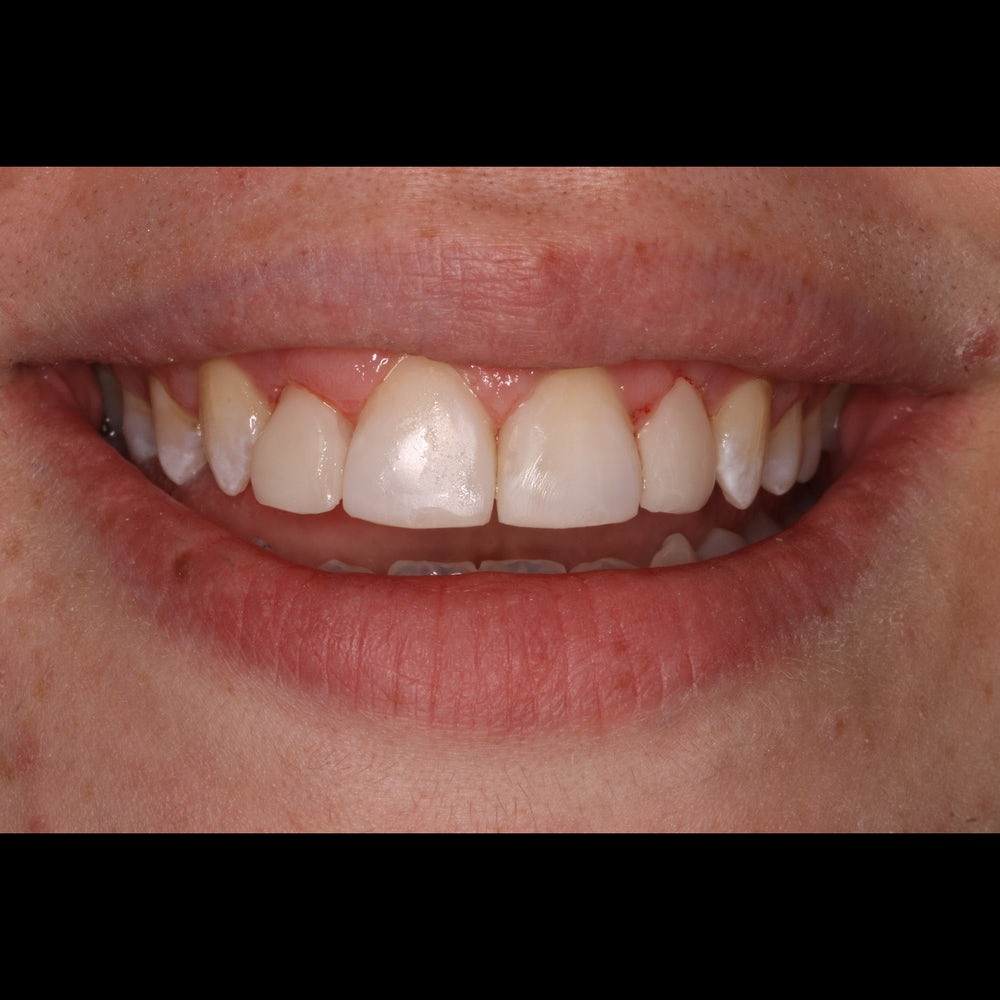 colleen - composite bonding - after