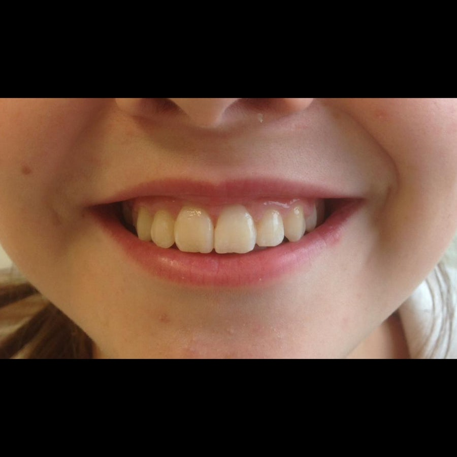 Young girl - 10 years old - after 6 month braces 5