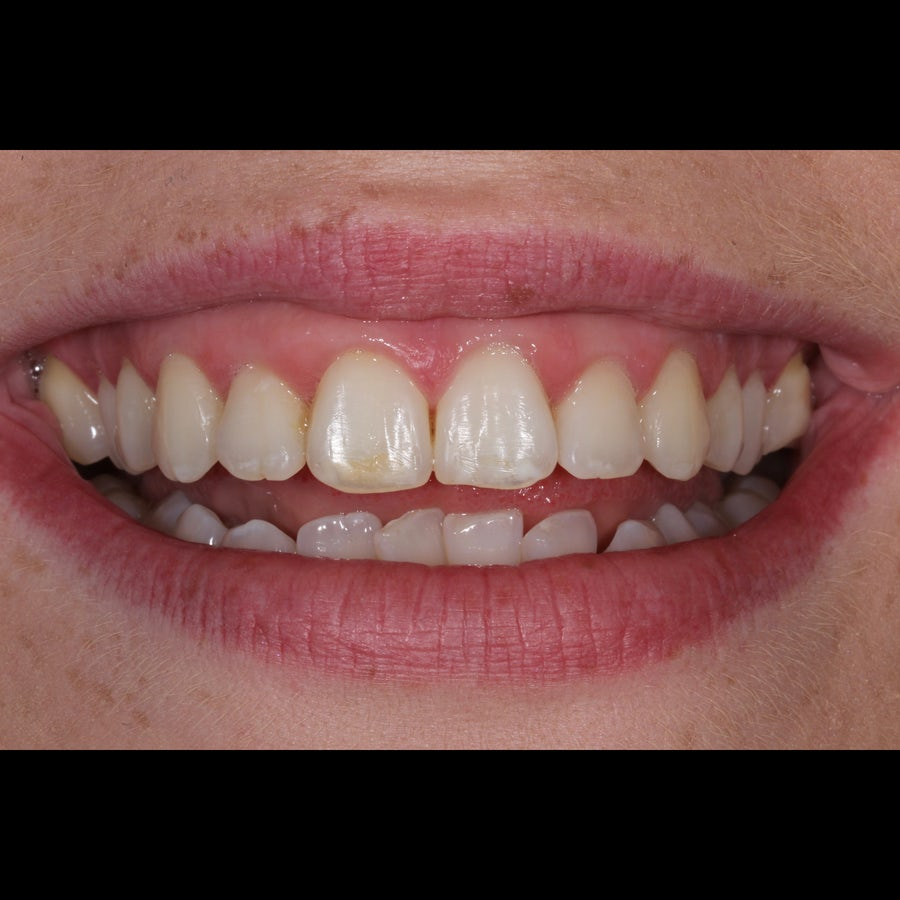How 6 month braces work - Tara - after - 3Dental