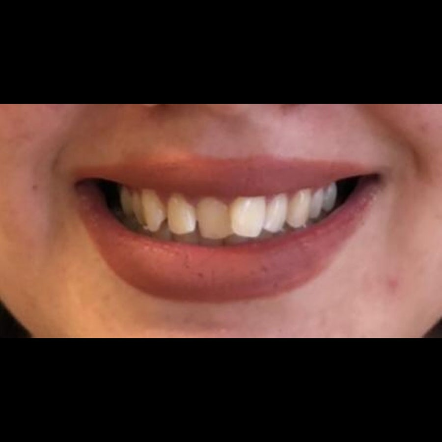 Before - Laura - Dental bonding and 6 month braces