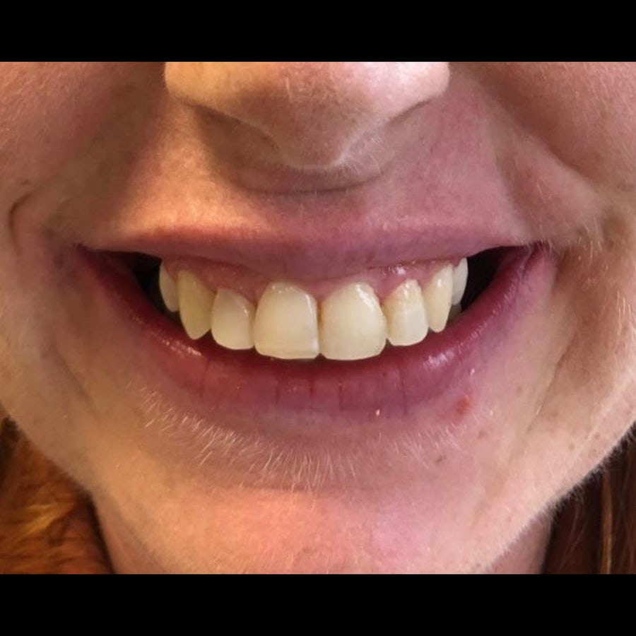 6 month braces - after - 3Dental