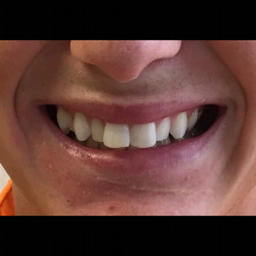 How 6 Month Braces Work - 6 month braces - before - 3Dental