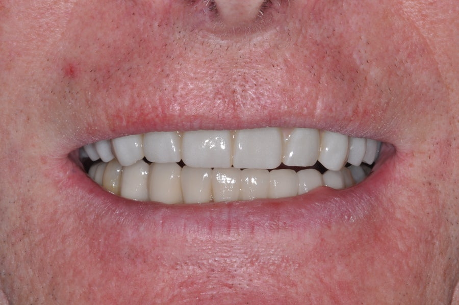 Dental implants - after - 3dental