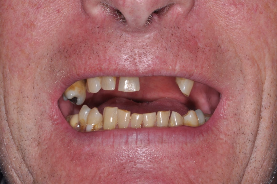 Dental implants - before - 3dental