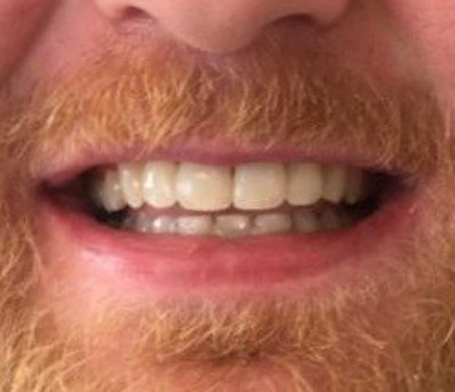 How 6 Month Braces Work - Karl - 6 month braces - after - 3Dental
