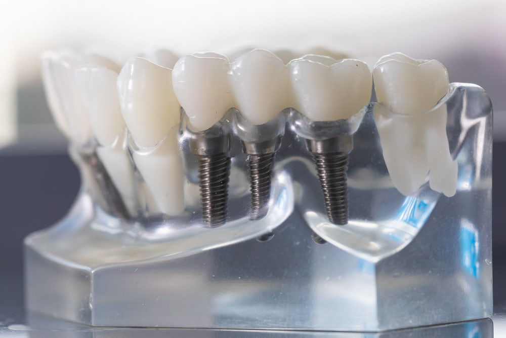 Dental Implants with screws in glass casing