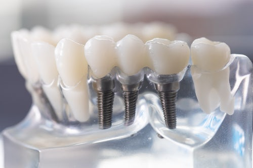 Dental implants - 3Dental Dublin & Limerick