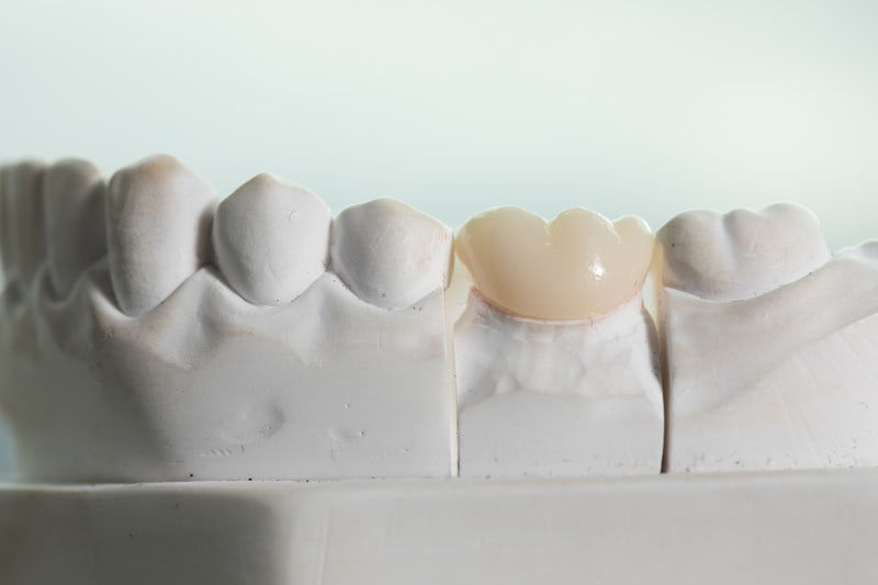 What Are Dental Crowns?