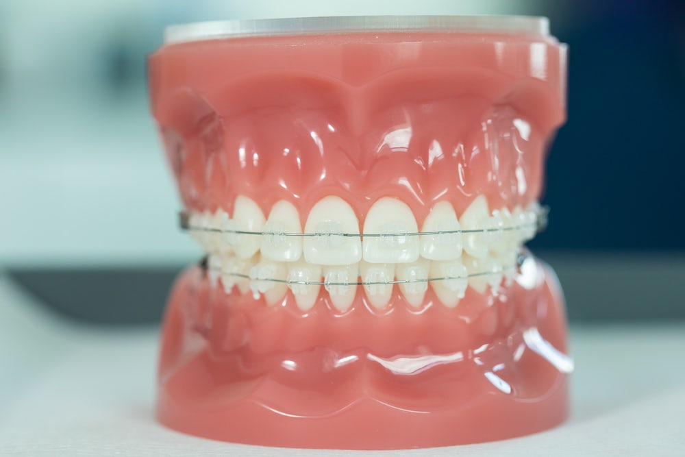 can clear braces fix an overbite?