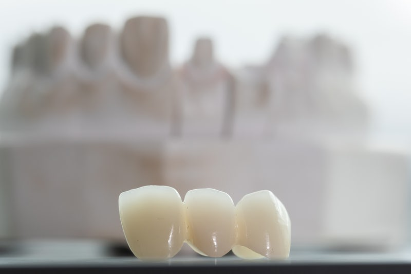 The Ultimate Guide To Dental Bridges