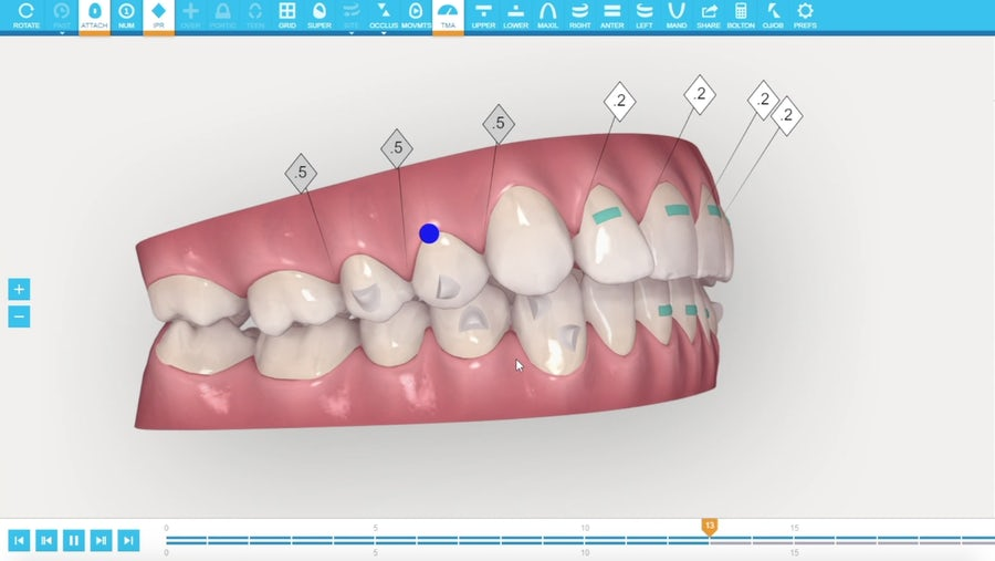 Invisalign clincheck scan