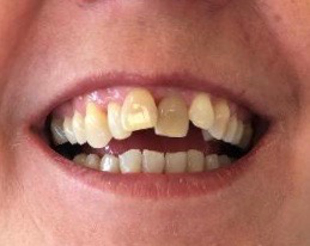 fidelma-6-month-braces-before