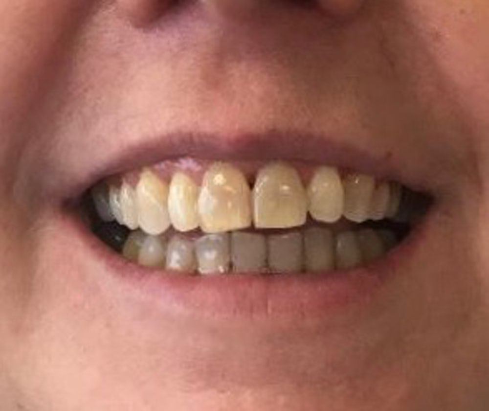 fidelma-6-month-braces-after
