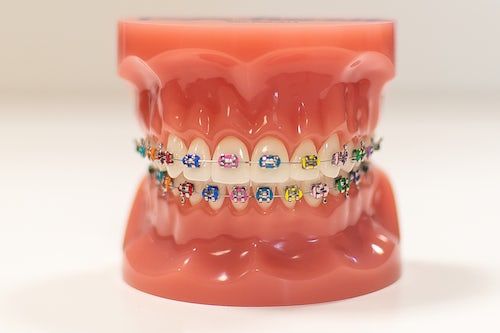 Kids braces - 3Dental Dublin & Limerick