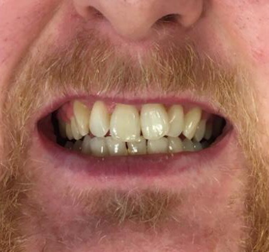 How 6 Month Braces Work - Karl - 6 month braces - before - 3Dental