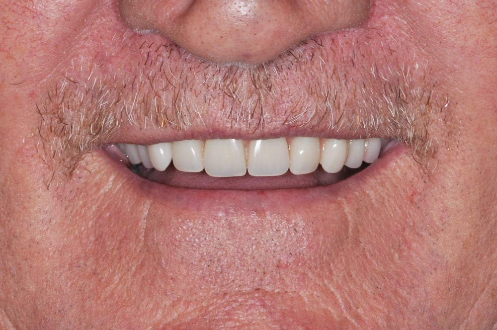 teeth in a day after