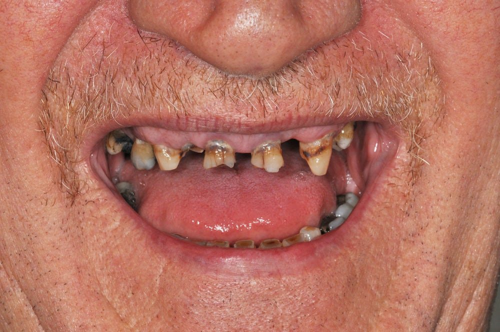 teeth in a day before