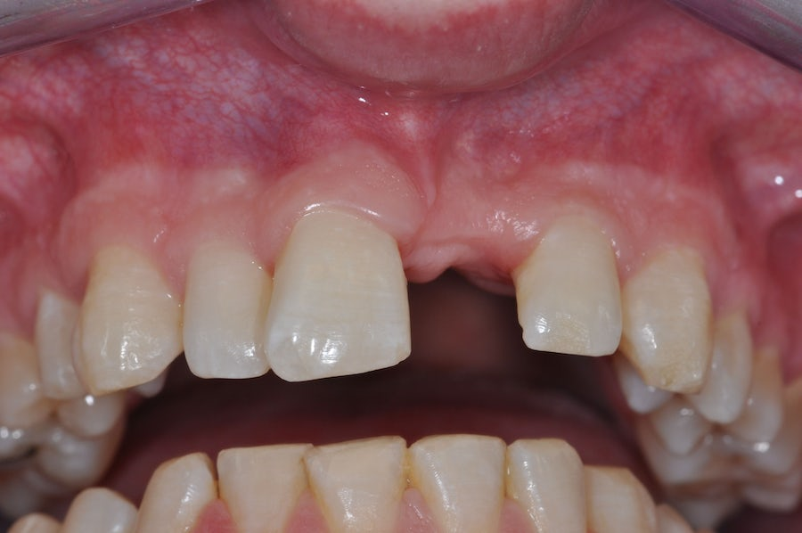 Single Tooth Implant - before - 3Dental